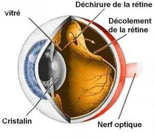 LE DÉCOLLEMENT DE LA RÉTINE decol1-300x269