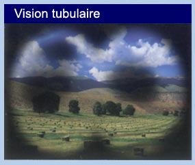 LE GLAUCOME tunnel_vision