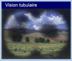 LE GLAUCOME tunnel_vision