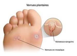 VERRUES - excroissances bénignes de la peau verrues-plantaires_img1-300x218